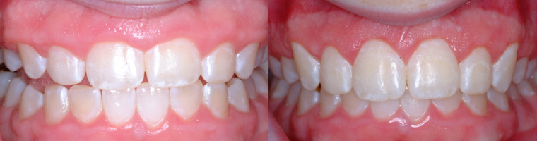 Esthetic Crown Lengthening in Traverse City, MI