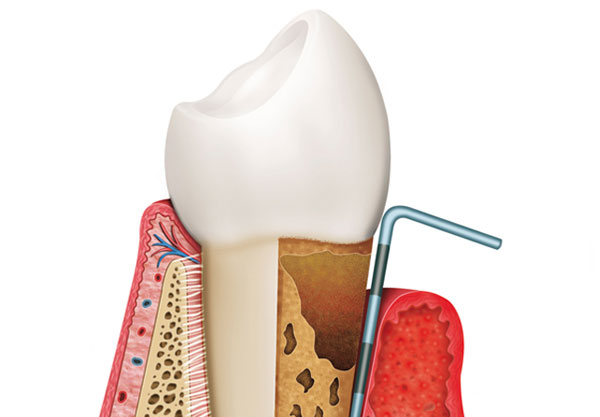 Periodontal Surgery in Traverse City, MI