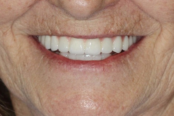 Full Denture Implants in Cadillac, MI
