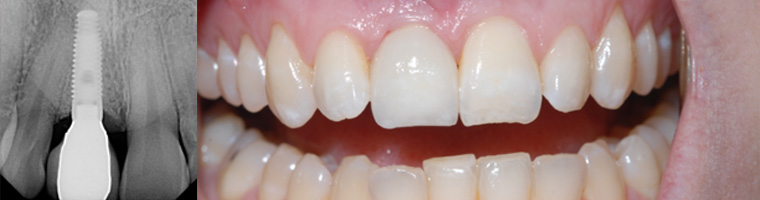 Dental Implant Placement in Traverse City, MI