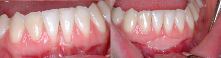 Free Gingival Graft in Traverse City, MI